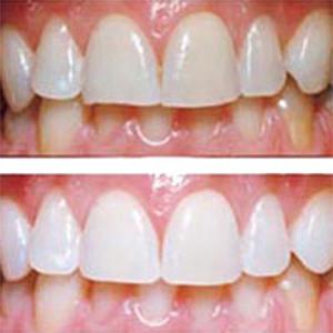 Отбеливания зубов zoom 3 отзывы